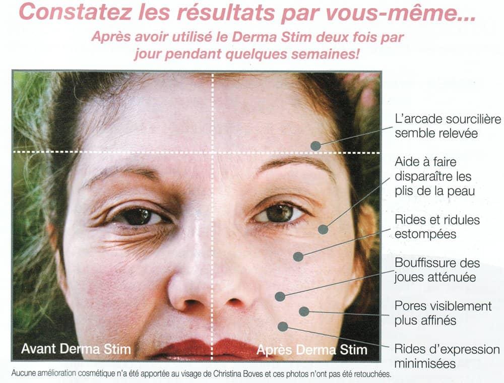 derma-stim-avis