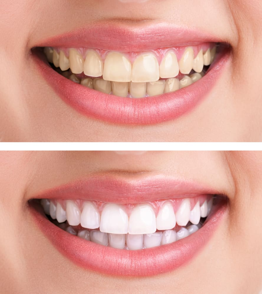 dentifrice-charbon-actif-dents-blanchiment-blanches-astuces