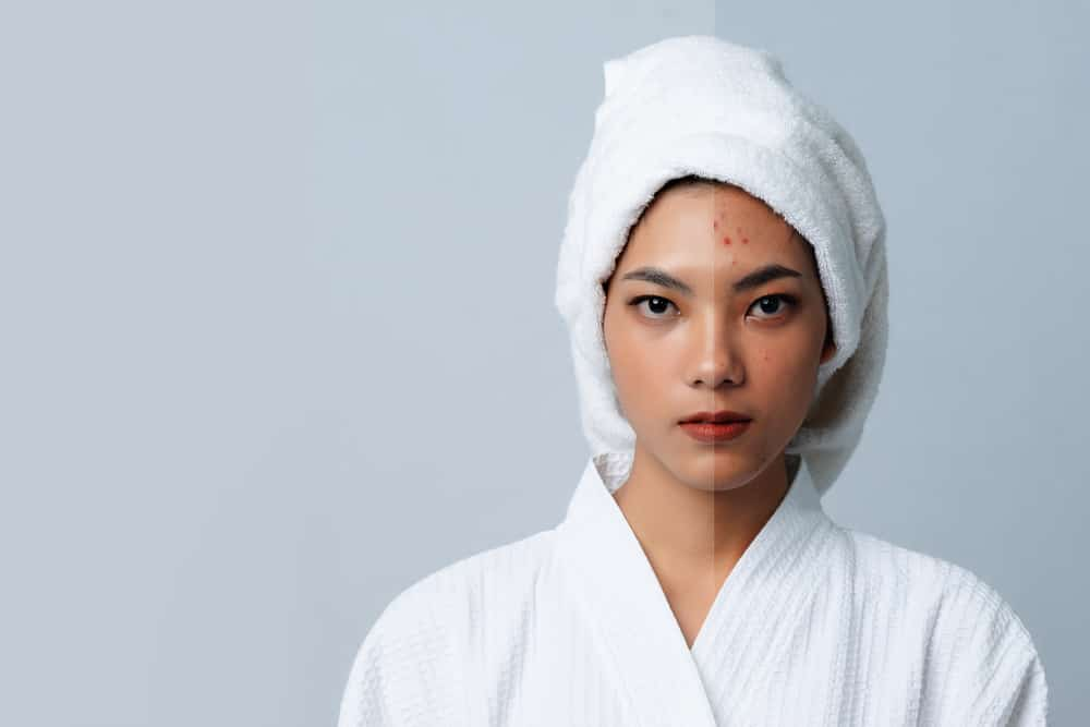 the-ordinary-suspension-acide-azelaique-soin-visage-acne-routine-beaute